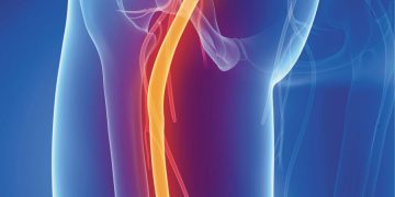 Lower Back Pain, Burning Butt, Leg Pain and Burning Feet – Sciatica/Piriformis Syndrome