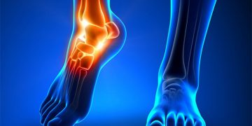 Plantar Fasciitis – Think Hands on Treatment Before Injection