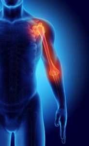 Soft Tissue Massage Newcastle MSK Sports Injury Clinic