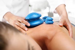 Dry Cupping Therapy Newcastle 1 MSK Sports Injury Clinic