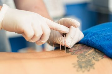 Acupuncture Newcastle